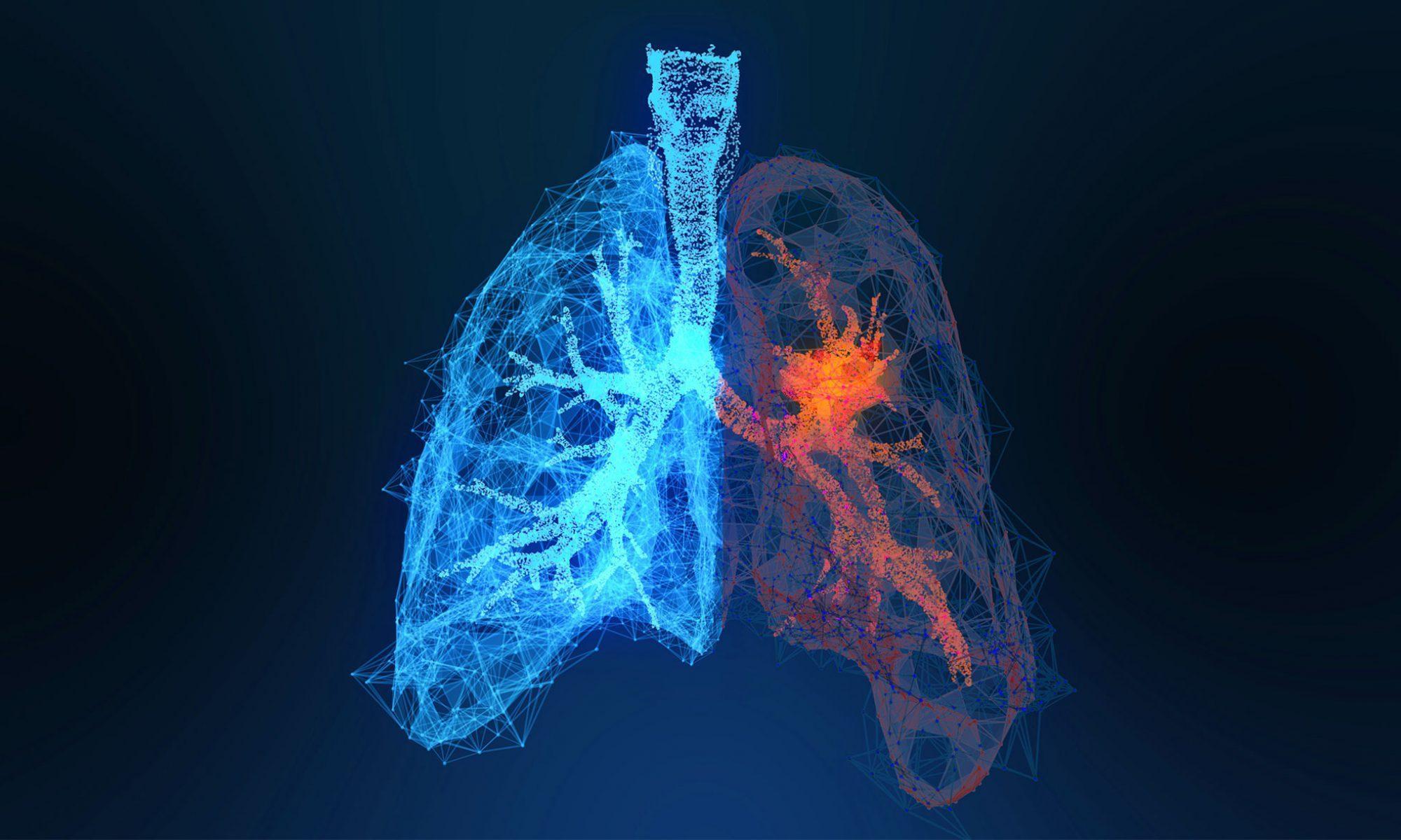 Svenska Lungcancerstudiegruppen